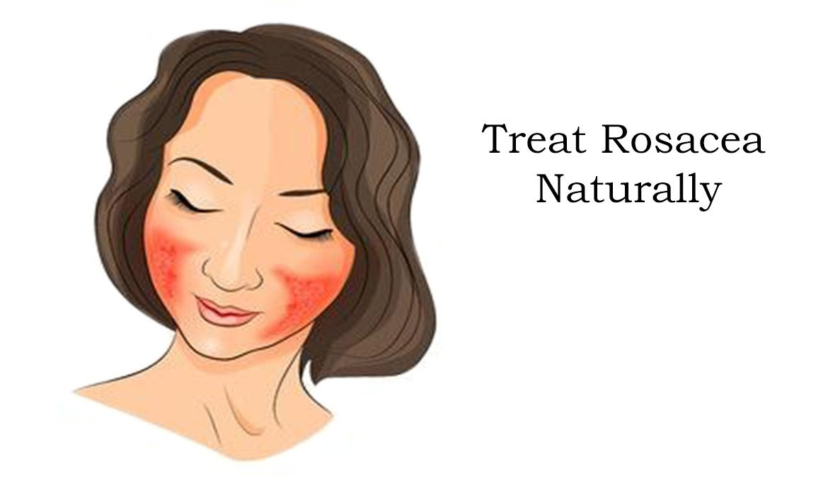 How to Reverse Rosacea Naturally - Nothingsincurable